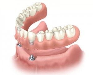 implant-over-dentures